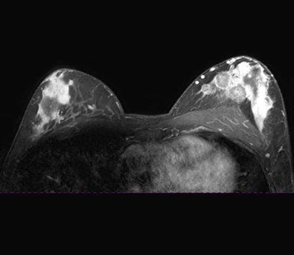 Mammavorsorge mittels MRI